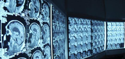 radiography-jobs